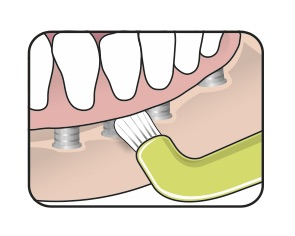 dental cleaning image